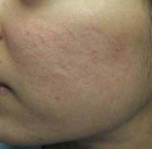 Aknenarben, nach der Laserbehandlung