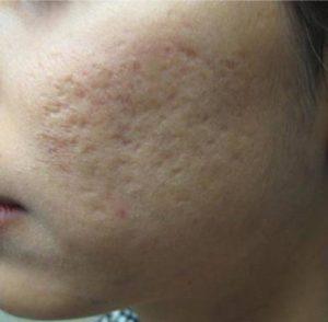 Aknenarben im Gesicht, vor der Laserbehandlung